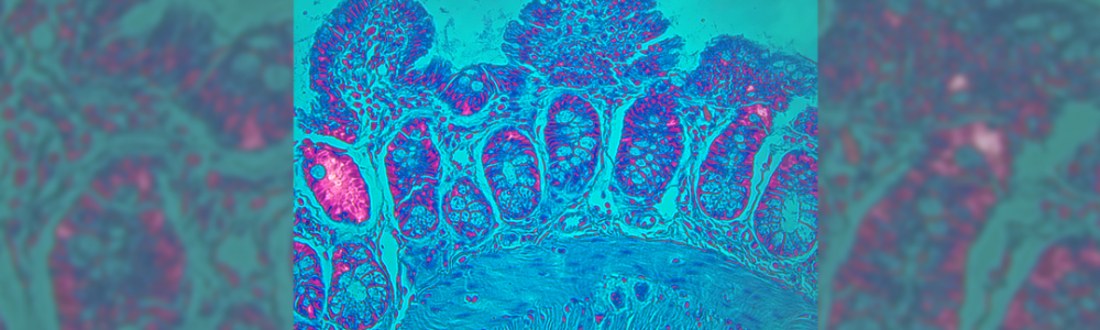 Mouse ileum under a microscope.