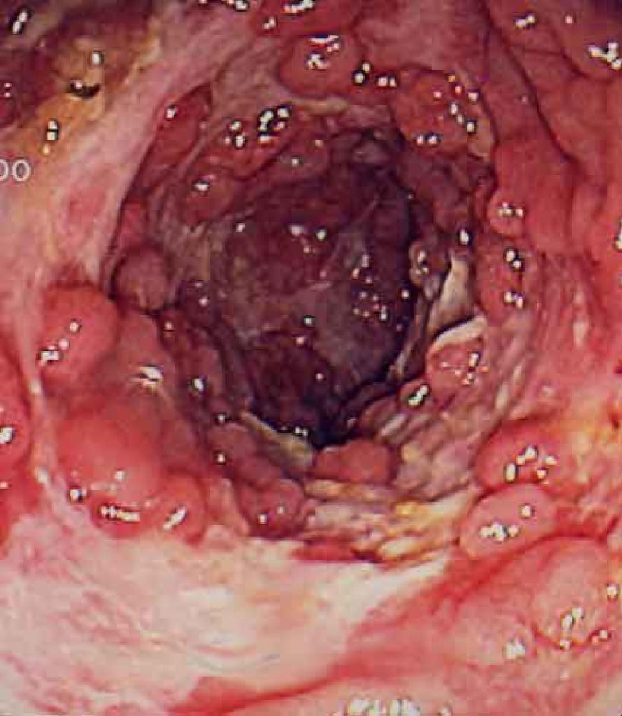 crohn's disease research paper
