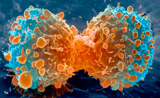 Cancer cells are characterized with uncontrolled proliferation. The immune system eliminates cancers cells using MHC class I and cytotoxic T cells.